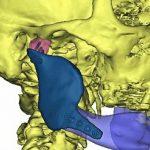 Indywidualny implant wydrukowany w drukarce 3D